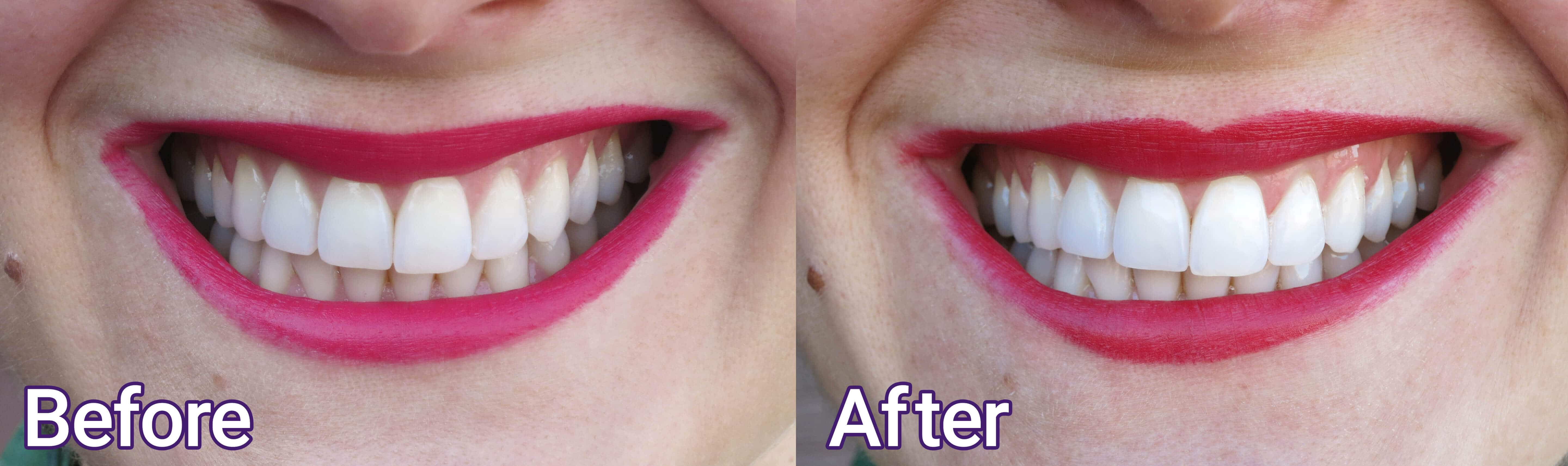 Smile Brilliant Teeth Whitening Before and After by Modnitsa Styling